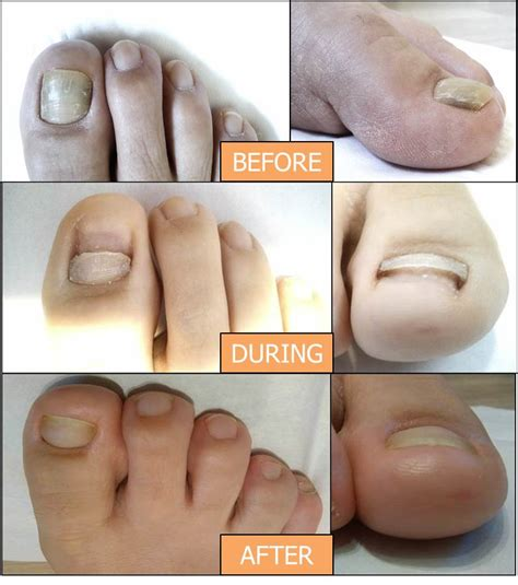 Laser for Nail Fungus / Podiatry