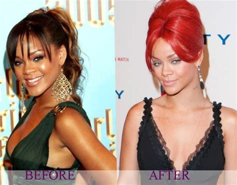 Lala Anthony Plastic Surgery Before And After - celebrity