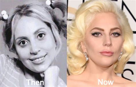Lady Gaga Plastic Surgery Before and After Nose Job, Boob